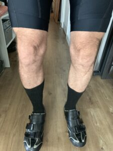 Tom Ford says I shouldn't wear shorts, but my legs are nice
